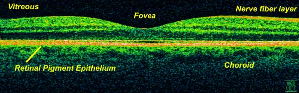 In-vivo-OCT-Scan einer Retina bei 800 nm und einer axialen Auflösung von 3 µm
