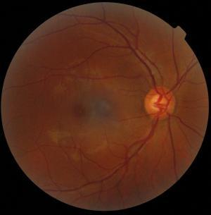 Ansicht des Augenhintergrundes. Zentral die Makula, rechts die Papille